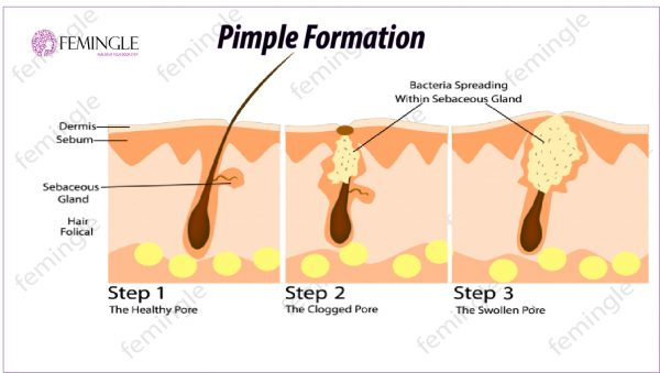 Pimple Formation